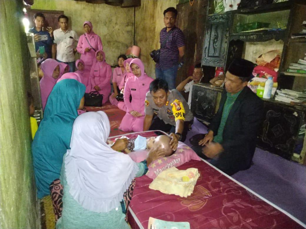 Peduli Sesama, Kapolres Kaur Bantu Pengobatan Bayi Penderita Hidrosefalus